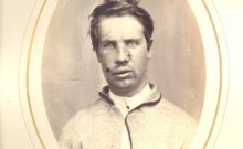 The medical image taken of Robert Jenkins after his wounding in 1865, only months after arriving in America (National Museum of Civil War Medicine)